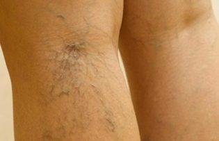 a varikózis népi megelőzése a lábakon szódát szedve visszeres