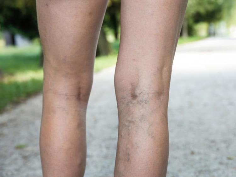 visszeresség a lábakon terhesség alatt okoz