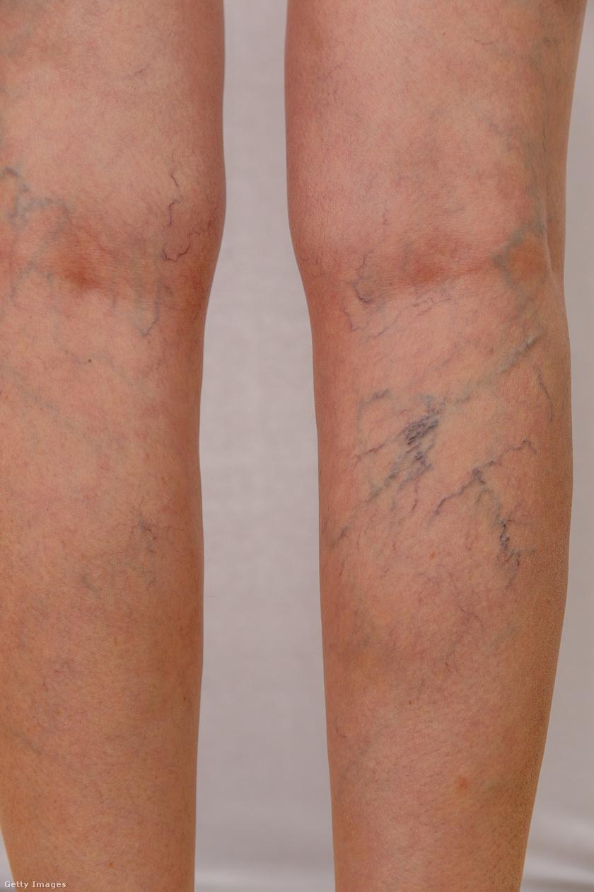 vékony lábak visszérrel bekötözheti a lábát visszérrel