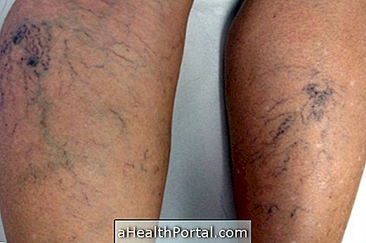 a bőr a varikózus vénákkal változik visszér visszacsikorog