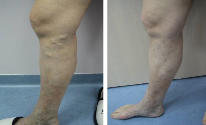 tula visszeres vénája az egyik láb visszeressége terhesség alatt
