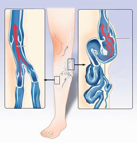 trombózis és visszér mi a különbség visszér a férfi lábának kezelésén