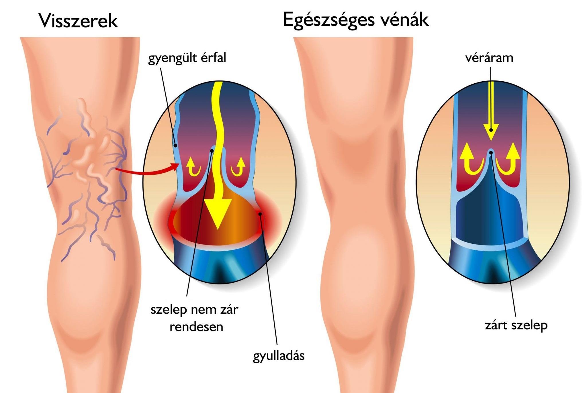 Kompressziós fehérnemű visszeres lábakra - A kismedence visszérit kezeljük