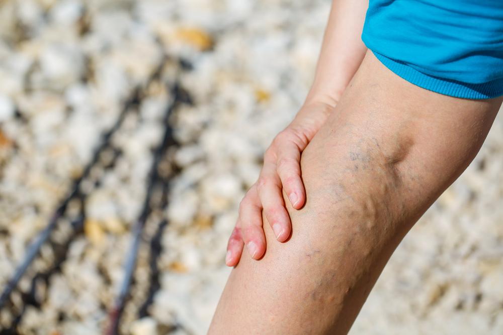zúzódás a lábon visszérrel mogyoró kérge a visszérből
