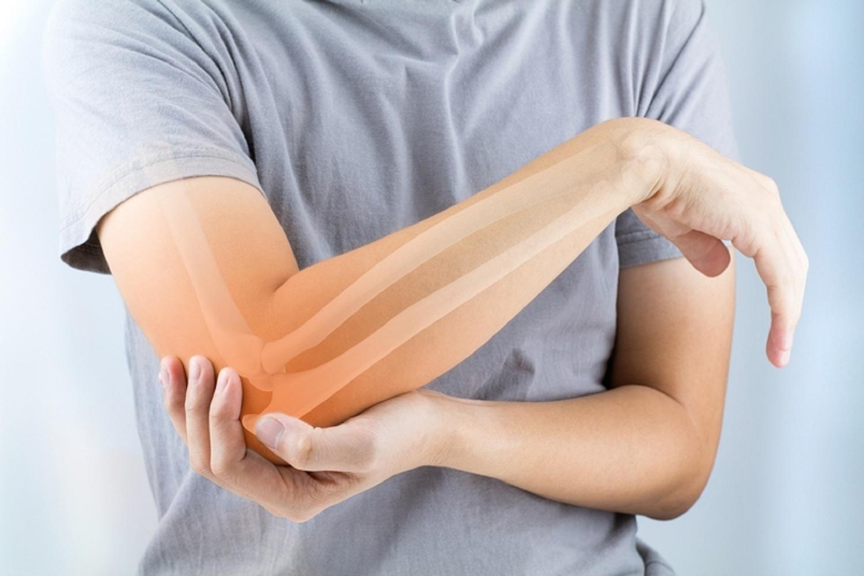 hogyan lehet enyhíteni az akut fájdalmat a visszérrel