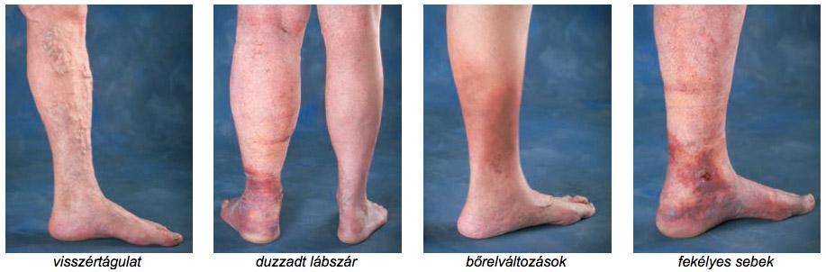 a lábak varikózisának szakaszai és kezelése