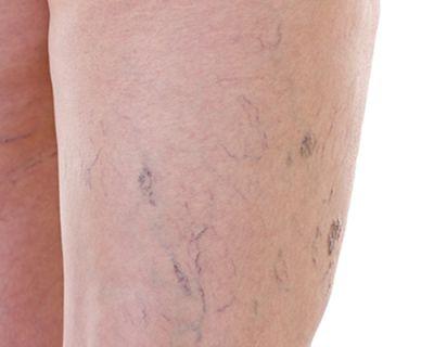 a visszér fő tünetei lábpermet a visszér ellen