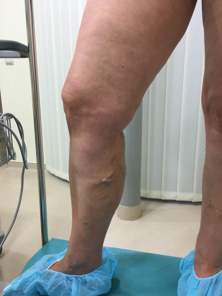 a kismedence mkb visszér duzzanat kezelése a varikózisos lábakon