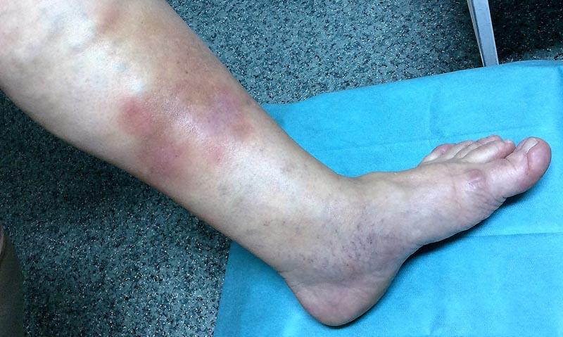 A láb ödémájának hatékony kezelése visszerekkel - Az okok
