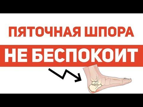 a karok és a lábak visszérgyulladása egyszerre visszér, a hát fáj