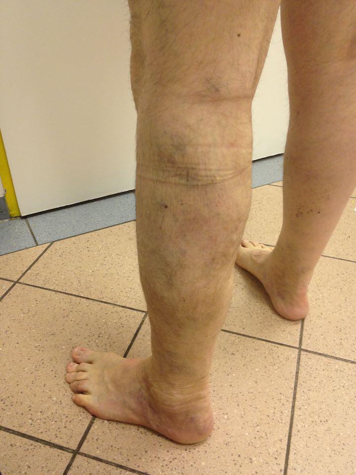 fotó lábműtét után visszér visszér 15 év
