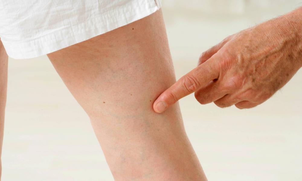 az ujjak visszér hogyan és mit kezelnek a visszér