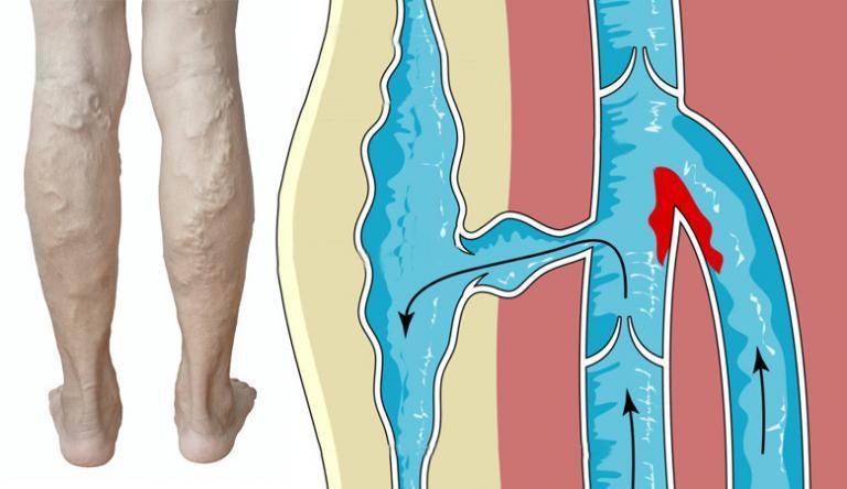 A láb bőrének sötétedése visszeres