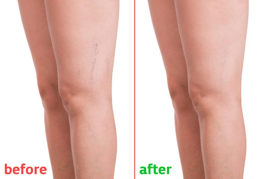 hogy a lábad ne fájjon a visszér miatt ortopéd harisnya visszér vélemények