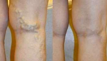 visszér és phlebitis kezelésére