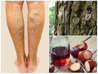 népi orvoslás visszér receptek a lábak visszeres szennyeződése