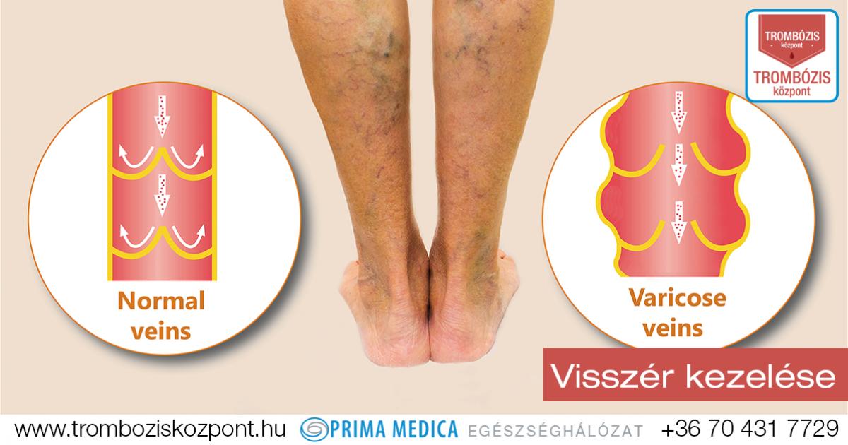 a lábak varikózisának komplex megelőzése farmer visszérből