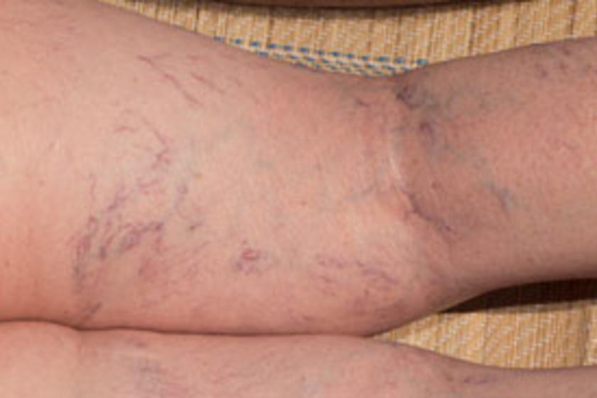 Varicocele-műtét utáni maszturbáció - Urológiai megbetegedések, Visszér a maszturbációtól