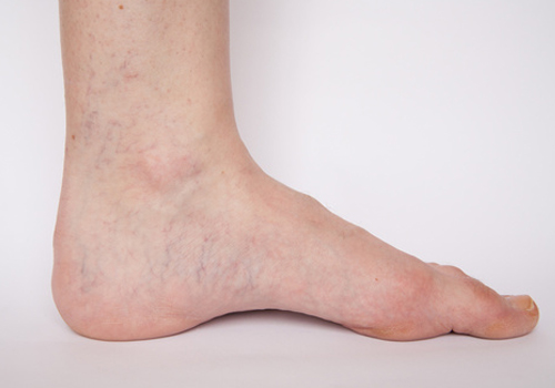 a lábak mélyvénáinak visszeres tünetei