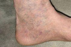 enyhíti a lábdaganatot visszérrel