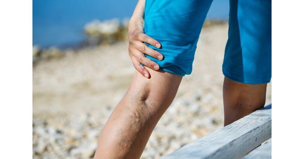 visszér a fürdőben fürdhető a lábak visszérgyulladása és kezelése