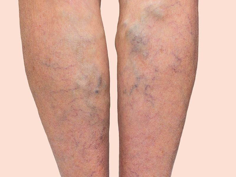 a bőr a varikózus vénákkal változik hogyan lehet epilálni a visszér ellen