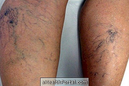 a bőr a varikózus vénákkal változik hogyan gyógyítja meg a varikózisokat a lábakon