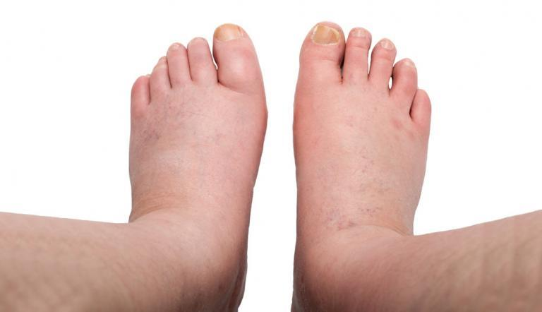 a jobb láb duzzanata, amelyen visszér