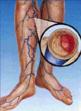 a lábak visszérgörcsölnek betegséggel járó visszérrel