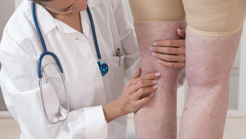 a lábak visszérgörcsölnek visszér és hidrogén-peroxid