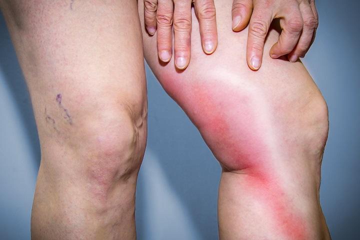 burgonya visszér tömöríti visszér és lábduzzanat kezelése