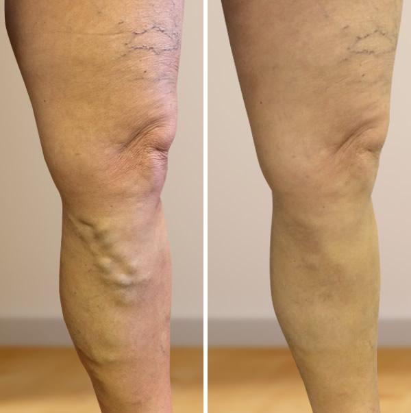 erek és koleszterin visszér ellátás műtét után a visszeres lábakon