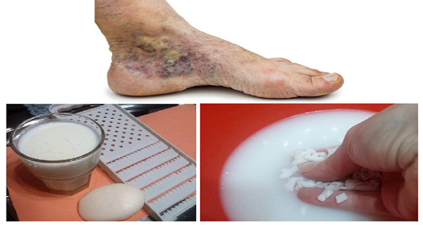 visszér a vénák eltávolítása után visszér és ekcéma a láb kezelésén