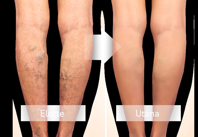 fehérnemű visszeres lábak számára régi népi recept kenőcs visszér