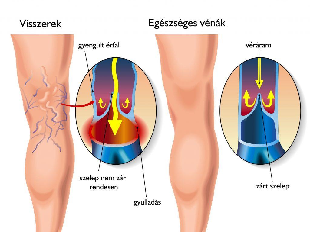 visszér a műtét következményeként a varikózis tünetei a lábakon