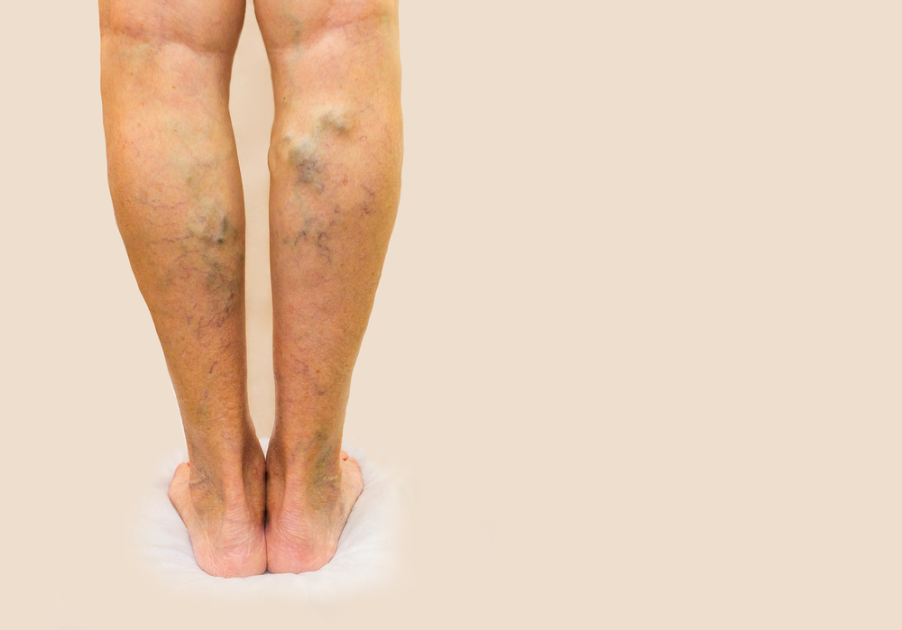 kezelés visszér levével hogyan lehet szárnyalni a lábakat a visszérben