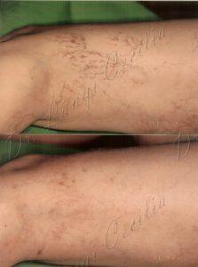 hatékony módszerek a lábak varikózisának kezelésére milyen terhelések tilosak a visszereknél