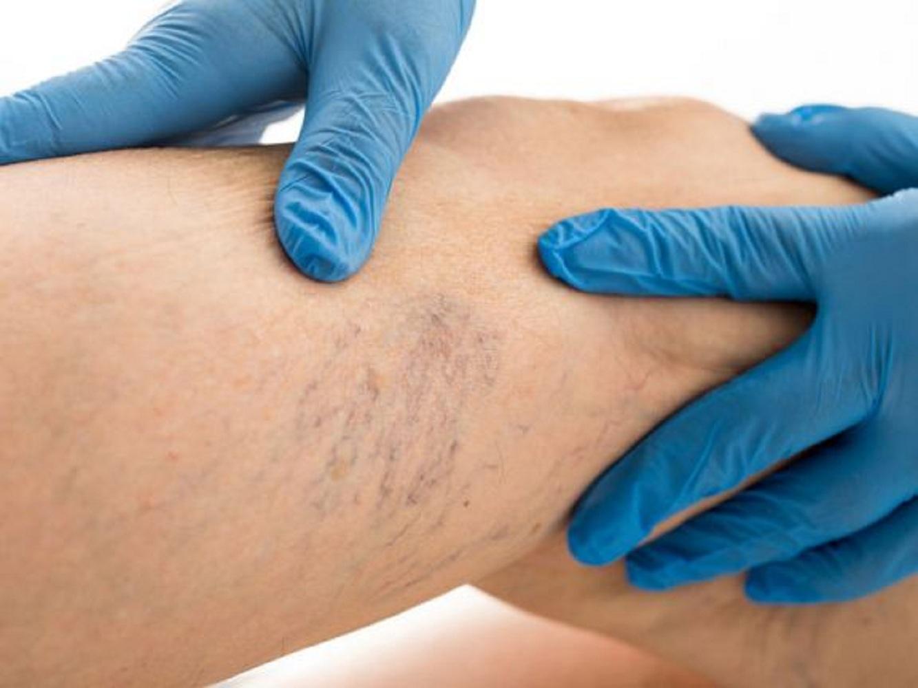 a varikózis miatt fáj a láb