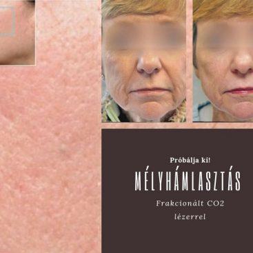 visszér mezoterápia kezelése
