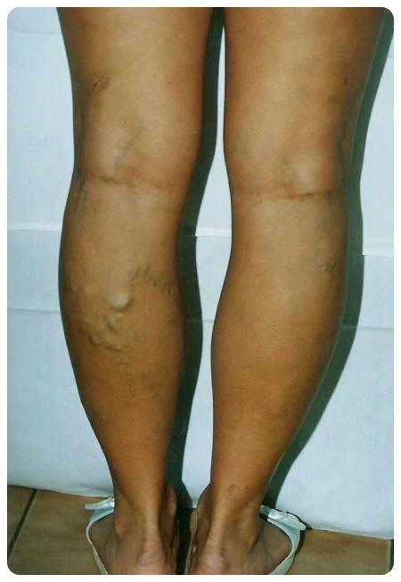 hogyan kell kezelni a lábat visszérrel