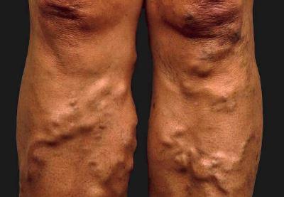 az egyik láb fájdalma visszeres