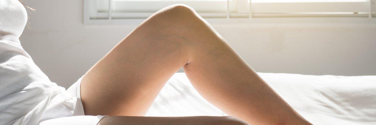 zúzódás a visszérben visszerek kezelése endovasal