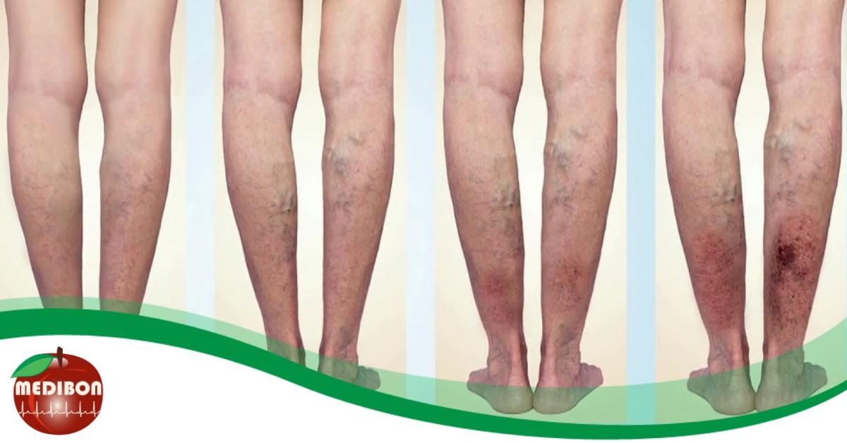 hatékony gyógyszer a visszerek a lábakon