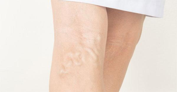 A varikózis oka a lábon, Rejtélyes zúzódások: ezt jelzik