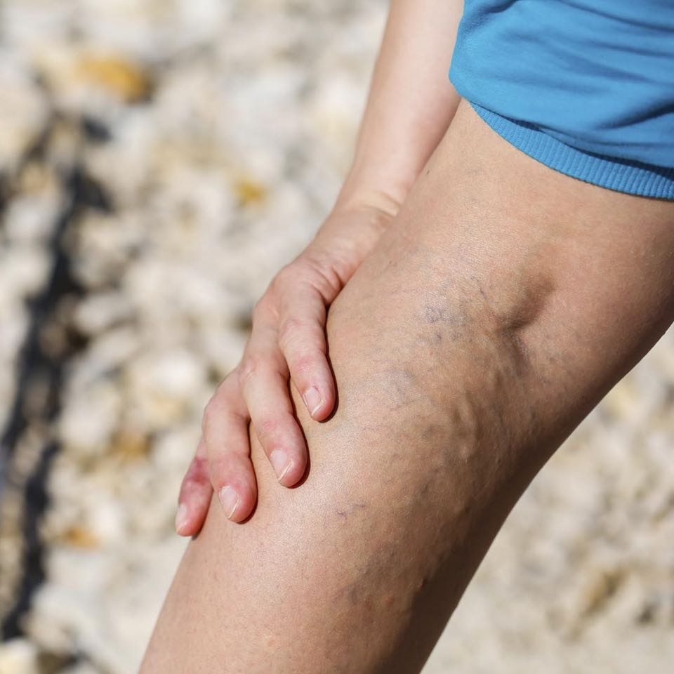 visszerek a lábakon fekélyekkel visszerek eltávolítása az alsó végtagokon