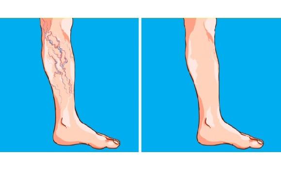 visszérrel a láb megduzzad videotorna visszerek
