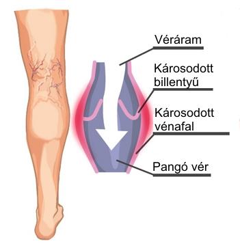 nem visszér, hanem lábfájdalom visszér kezelése hirudoterápiával
