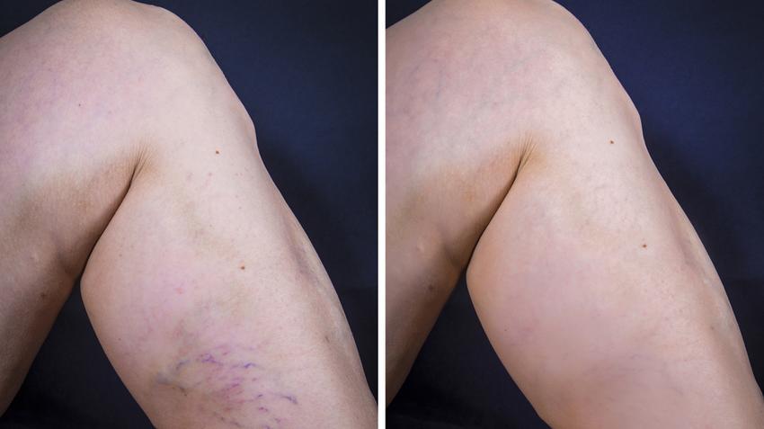 hol hajtják végre a láb visszérműtétjét Szükséges-e műtétet visszér ellen