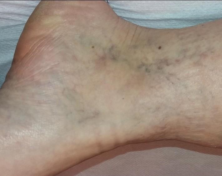 mezoterápia visszeres lábak esetén)