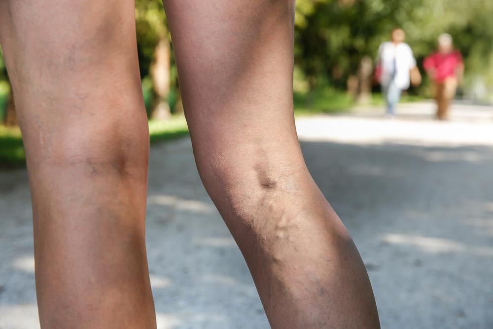mi a csipkebogyó használata a visszér ellen visszér a férfi lábának kezelésén
